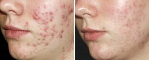 Acne kan worden verminderd met een acne behandeling door een huidtherapeut